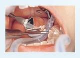 MegaAbrasiv FS Rhodium ( lusterko stomatologiczne)